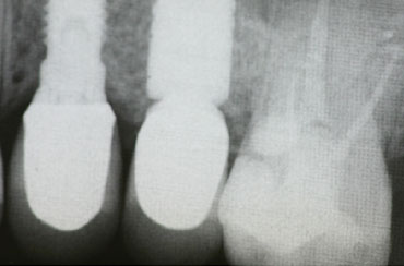Root Canal Treatment by The St.Peter's Dental Practice