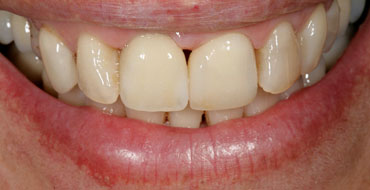 Image of Implant Dentistry