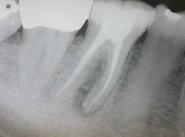 Image of treatment by The St.Peter's Dental Practice