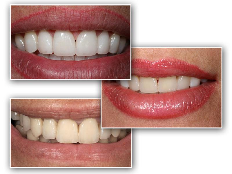 Dental Tips For Travellers - The St Peter's Dental Practice -