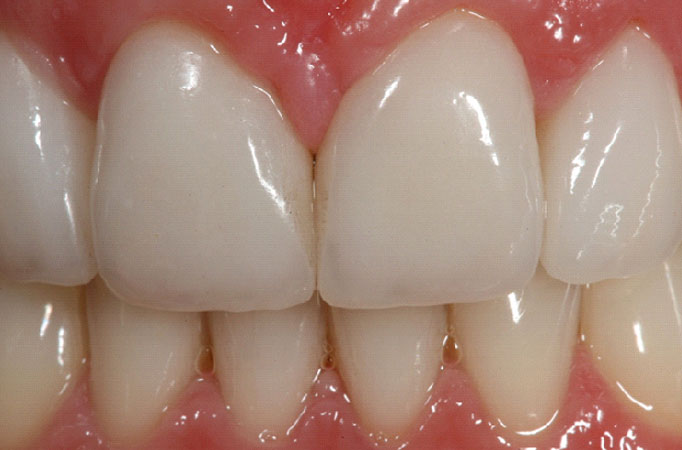 Image of Teeth Whitening