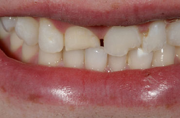 Image of Porcelain Veneers